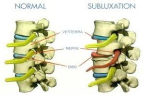 subluxation3